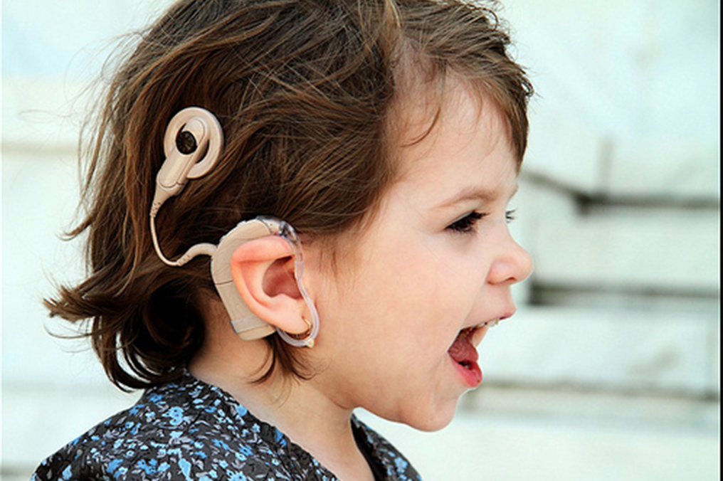 the controversy of cochlear implants Coclear implant controversy essayscochlear implant technology has advanced tremendously over the past 20 years deaf adults, deaf and hearing parents of deaf children, and family members.