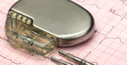High-efficiency, low footprint power management unit for implants